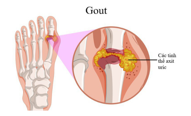 Viên uống hỗ trợ điều trị Gout Anserine Minami
