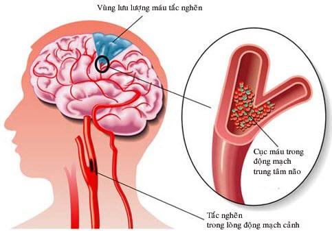 Thiểu năng tuần hoàn não có nguy cơ dẫn đến đột quỵ