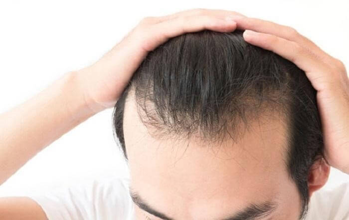 rụng tóc nam