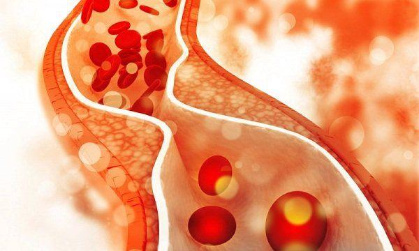Hypravas 20 Hộp 60 viên - Làm giảm cholesterol trong máu