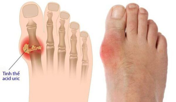 Opedulox 80 Hộp 30 Viên - Hỗ Trợ Điều Trị Bệnh Gout