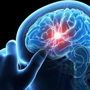 Citicolin A.T 500mg Hộp 30 Viên - Điều Trị Bệnh Về Não Cấp Tính