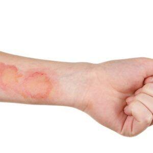 Nerusyn Lọ 3g - Điều trị nhiễm khuẩn